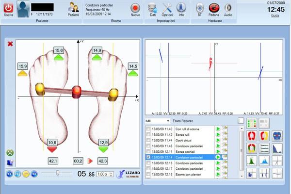 Analisi posturometrica San Marino