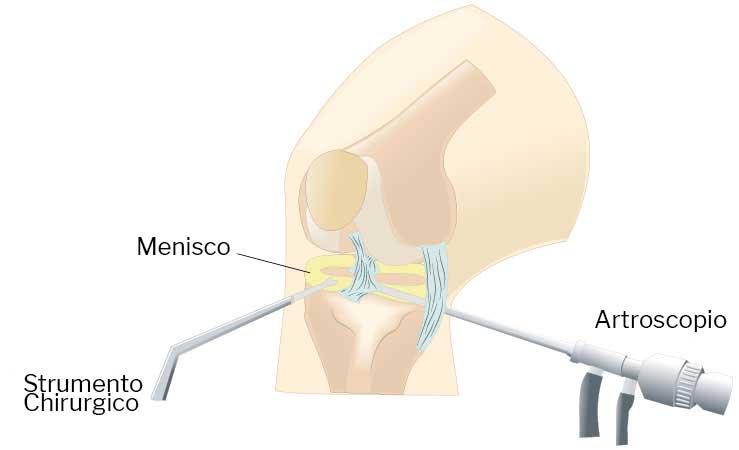 artroscopia-ginocchio