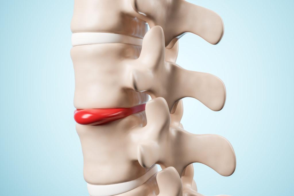ortopedia-ernia-discale
